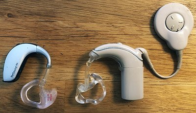 Cochlear implant vs Hearing aid